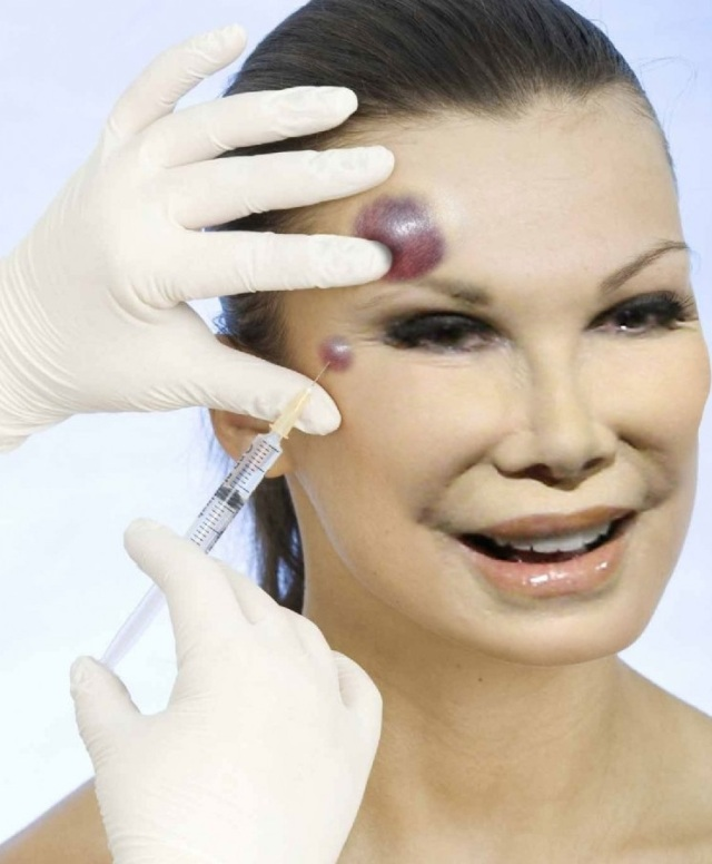 Joan-Rivers-with-Botox