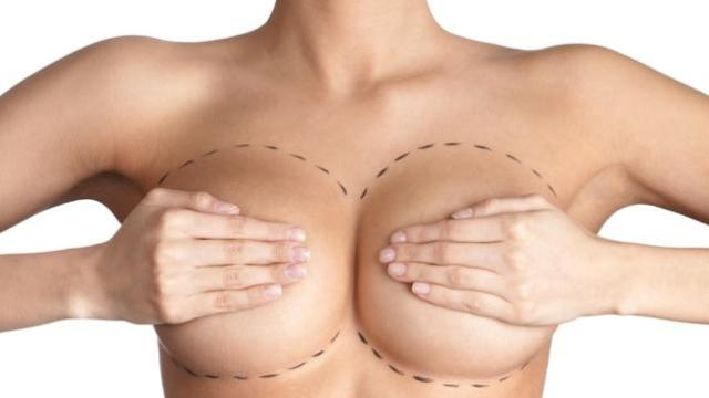 breast-enlargement-7